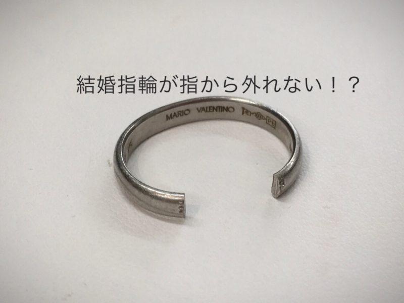指から指輪が取れない 指輪 修理
